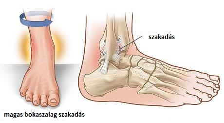 different types of ankle sprain